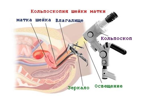 Кольпоскопия для диагностики заболевания