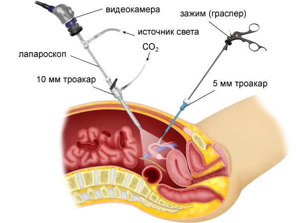 Принцип диагностической лапароскопии