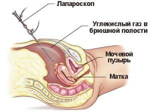 Лапароскопия при хроническом сальпингите
