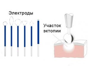 Диатермоэлектроэксцизия