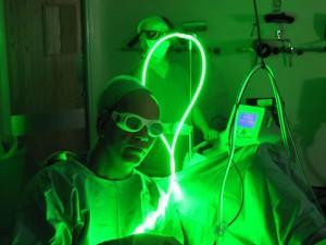 Лазерная коагуляция шейки матки