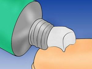 Мазь нистатин при поверхностных проявлениях молочницы