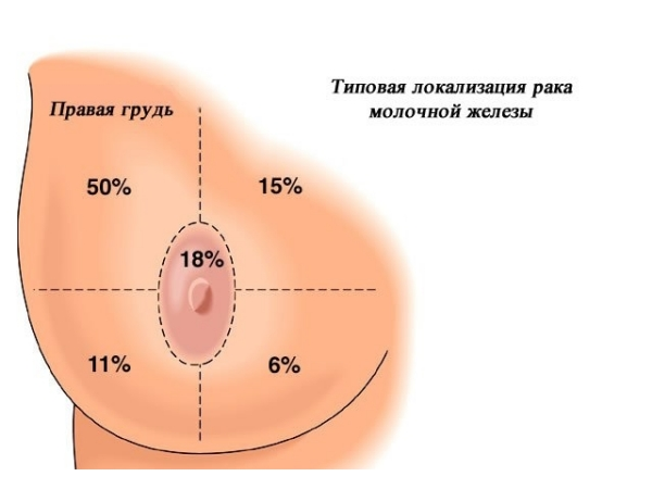 Локализация рака груди