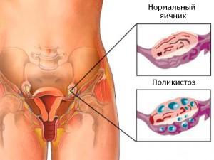 Нарушение месячных при поликистозе яичников