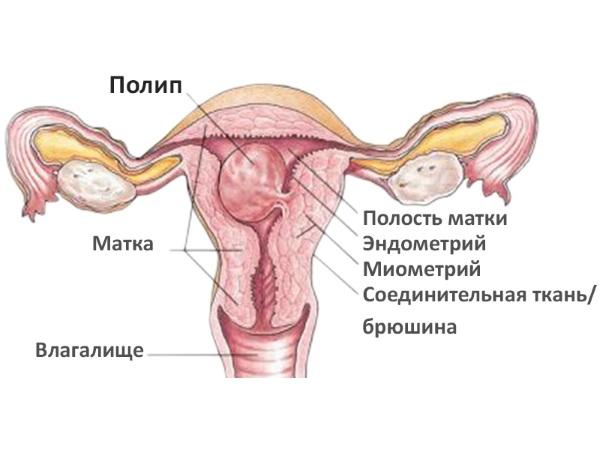 Схема полипа в матке