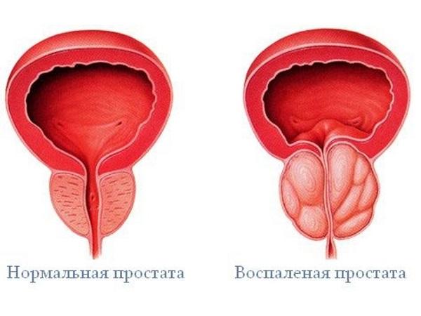 Простатит - осложнение после бужирования уртерты