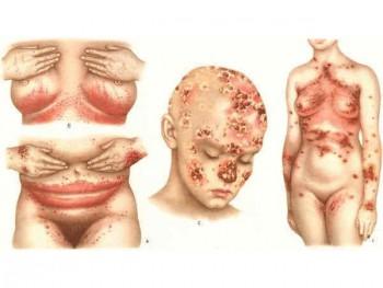 Поражение кожи при сифилисе