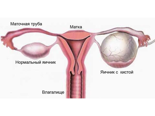 Киста яичника - причина полипа эндометрия