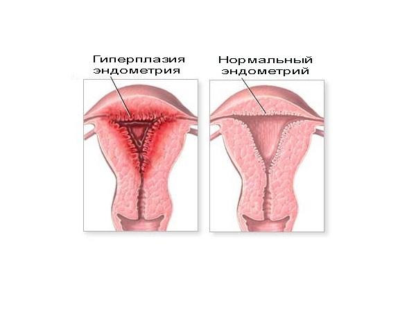Схема гиперплазии эндометрия