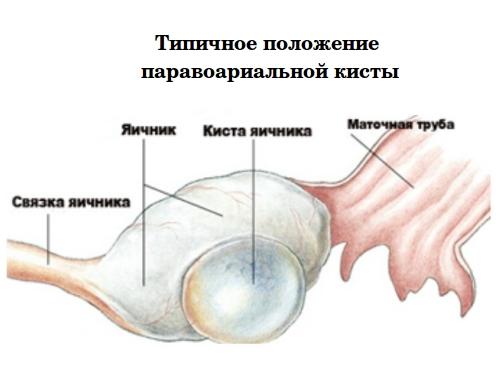 Типичное положение паравоариальной кисты яичника