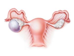 Увеличение яичников