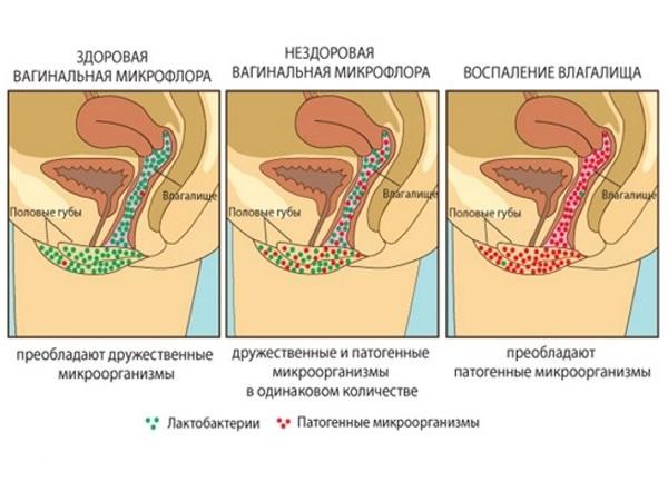 Виды вагинальной флоры