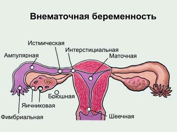 Внематочные беременности - следствие абортов
