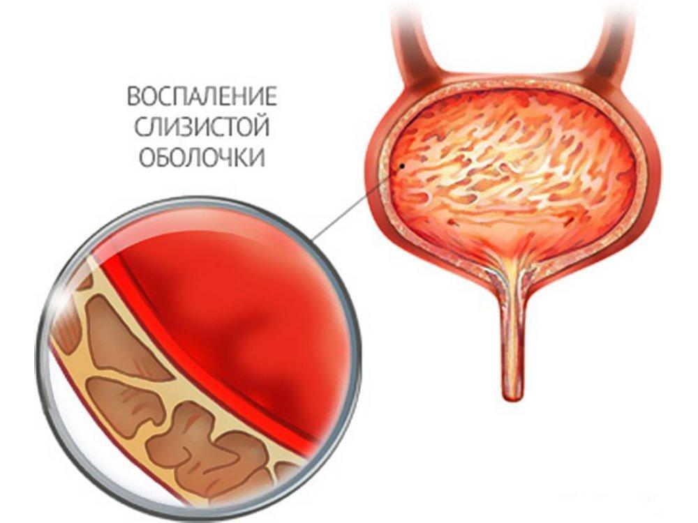 Воспаление мочевого пузыря как причина болезненного мочеиспускания