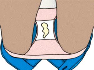 Ненормальные выделения при воспалительных процессах во влагалище