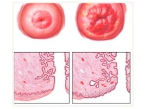 Попадание эпителия из шейки матки во влагалище