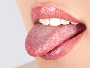 Деревянный язык - симптом сифилиса