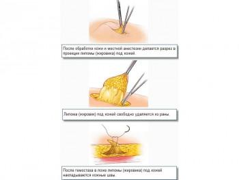 Удаление липомы молочной железы